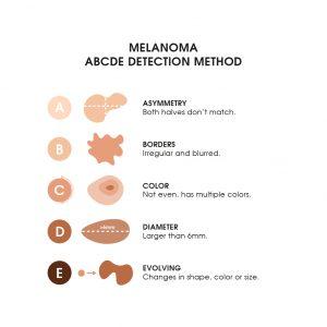 The Moisturizer - ABCDE Detection method for melanoma